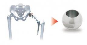 人工関節は、金属ボール(骨頭)の出来栄えが関節の動きに影響する(同社HPより)